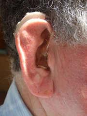 Les appareils d'audio prothèse coûtent cher