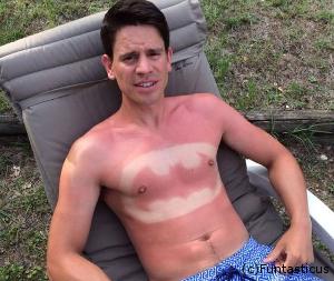 D couvrez coups de soleil et bronzages insolites - Transformer un coup de soleil en bronzage ...
