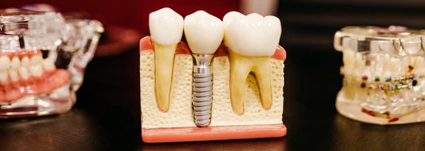 dentiste-dents-orthodontiste