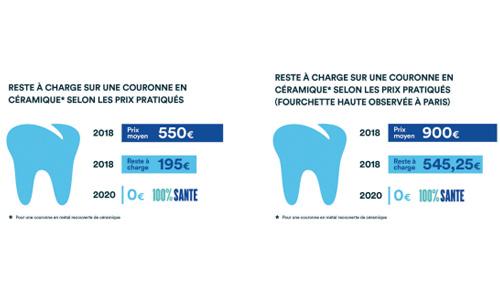 Comment marche le 0 reste à charge pour les soins dentaires?