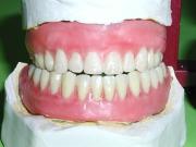 A quel point sont remboursés les soins dentaires ?